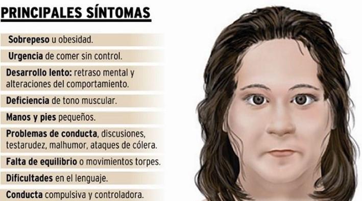 sindrome hambre